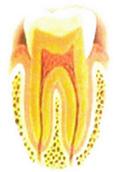 虫歯のない健康な歯