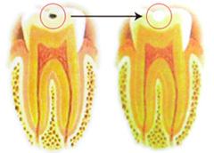 小さな虫歯がある歯