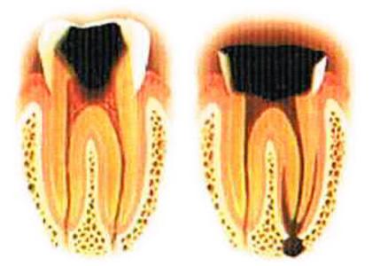 虫歯が進行して神経に達すると何もしなくてもズキズキしたり、噛むと痛みがでます。