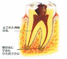 歯の中の悪いところを除去し清潔にしていきます。