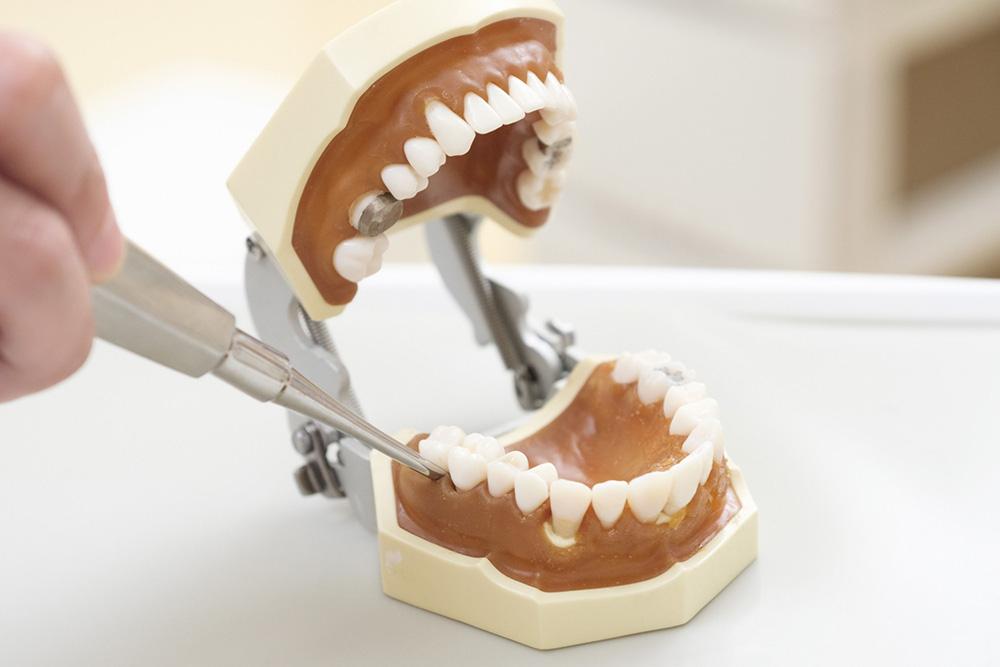 抜歯とは?