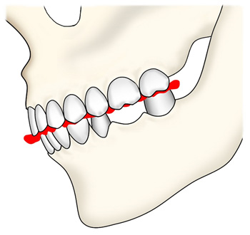 TMJ(顎関節機能障害)