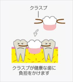 部分入れ歯のメリット・デメリット