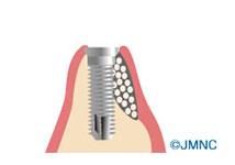 抜歯即時埋入、GBR,サイナスなど、あらゆる高度技術可能